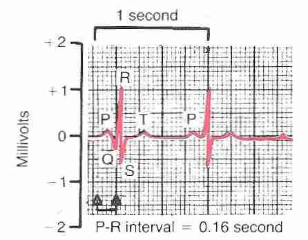 ELECTROCARDIOGRAPH (ECG,EKG) INTERPRETAION
