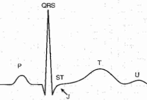 p wave atria begin depolarizing completes in pq pause qrs